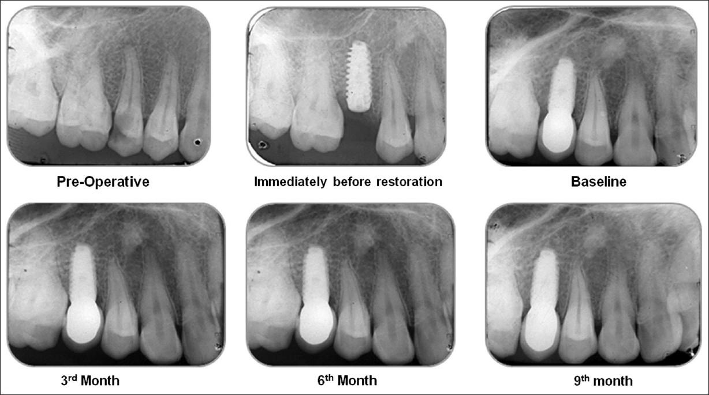 Bone platform switching: Perpetuating crestal bone
