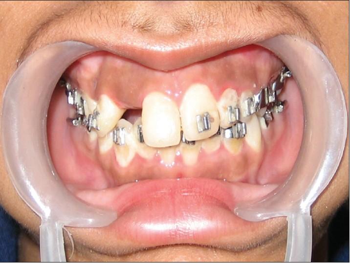 Kết quả hình ảnh cho Phenomenon while growing black gingival porcelain teeth
