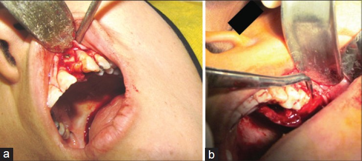 Figure 1: Coverage of bone graft by vascularized interpositional periosteal connective tissue fl ap: (a) Anterior jaw region. (b) Posterior maxilla