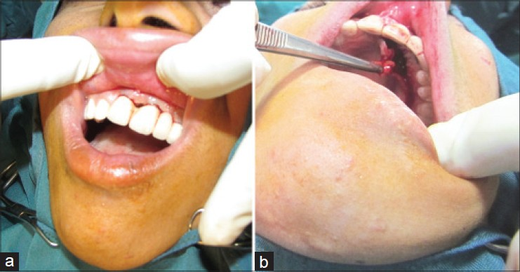 Figure 3: (a) Black space under existing fi xed prosthesis. (b) Vascularized interpositional periosteal connective tissue flap