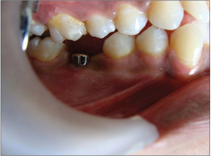 Figure 8: Implant with the gingival former placed over it