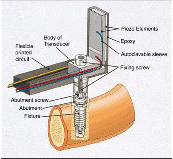 wiring diagrams linhai 300cc scooter vespa 300cc scooter