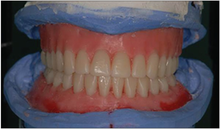 Full Mouth Implant Rehabilitation Of Patients With Severely Atrophic