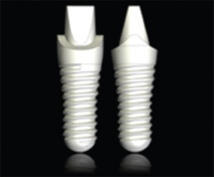 Zirconia Versus Titanium Dental Implants A Systematic
