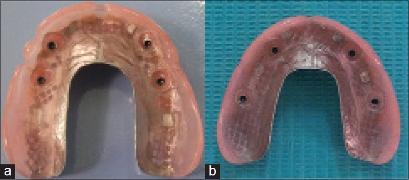 Effect of implant location on palateless complete