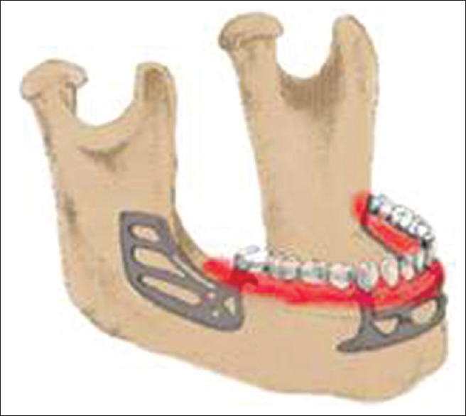 Revisiting the maxillary subperiosteal implant prosthesis: A
