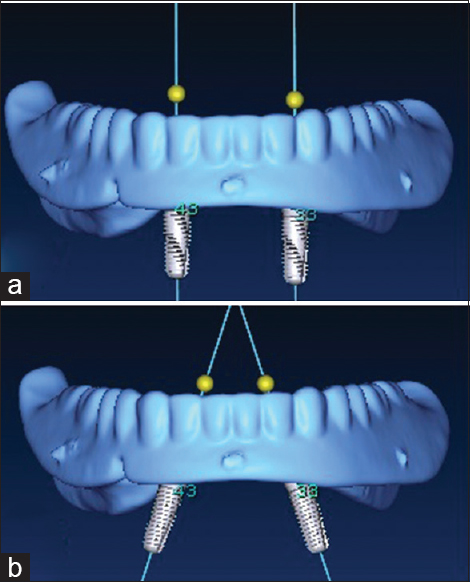 Figure 1: Virtual planning for proposed implant placement: (a) parallel implants, (b) 15° mesially tilted implants