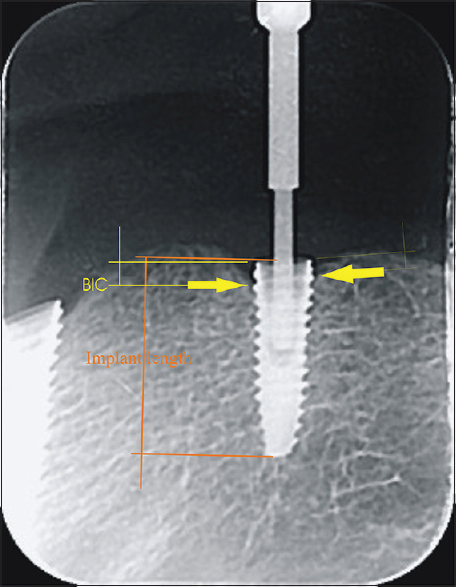 Figure 3: Identification of bone-implant contact in relation to reference points on periapical radiographs