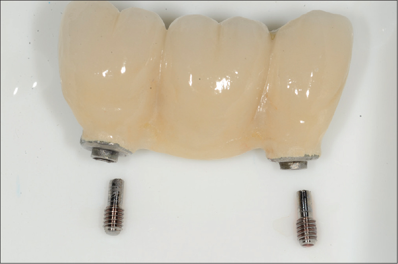 Figure 11: The screw was retrieved carefully without damage to internal surface of the implant